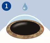 瞳孔を拡大させ、点眼麻酔をして、角膜の縁を約3ミリ切開します。