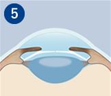院内でしばらくお休み頂いた後、 目の状態を検査し、問題がなければ帰宅頂きます。術後は医師の指示に従って点眼薬、内服薬をご利用下さい。