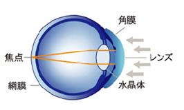 角膜の形状を正常な屈折状態にする