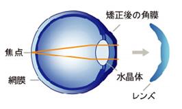 翌朝レンズを外すと視力が改善